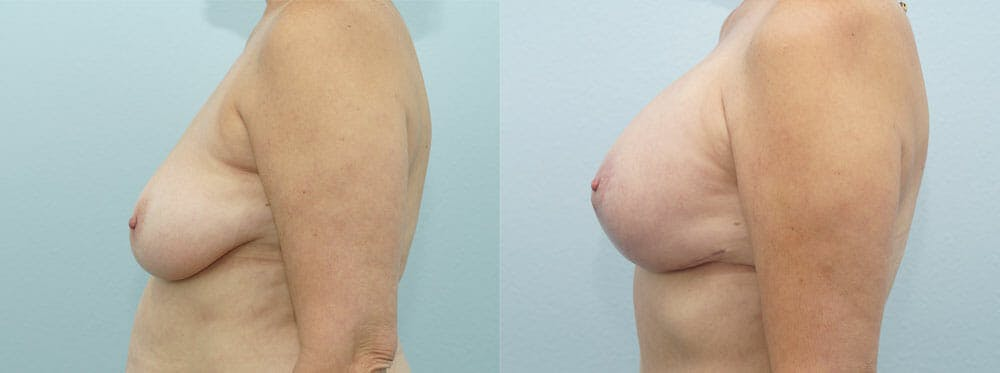 Breast Lift With Implants Gallery - Patient 48813952 - Image 3
