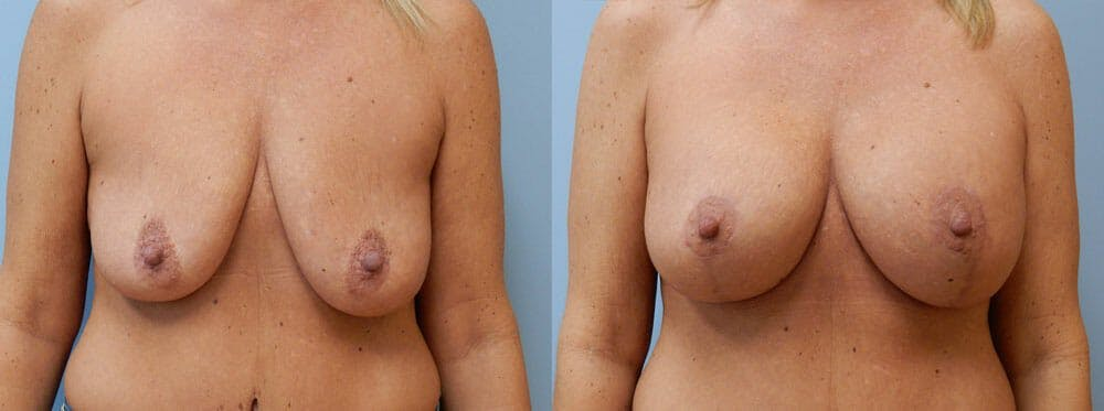 Breast Lift With Implants Gallery - Patient 48813958 - Image 1