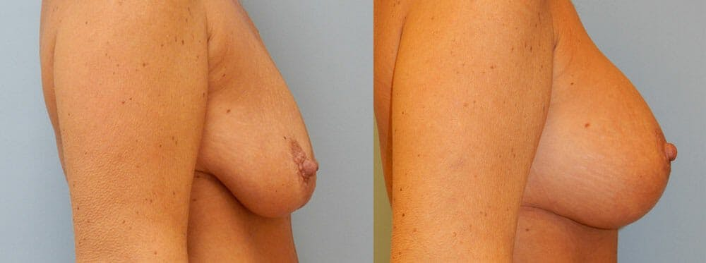 Breast Lift With Implants Gallery - Patient 48813958 - Image 2