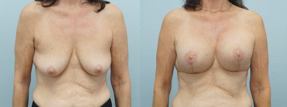 Breast Lift With Implants Gallery - Patient 48813965 - Image 1