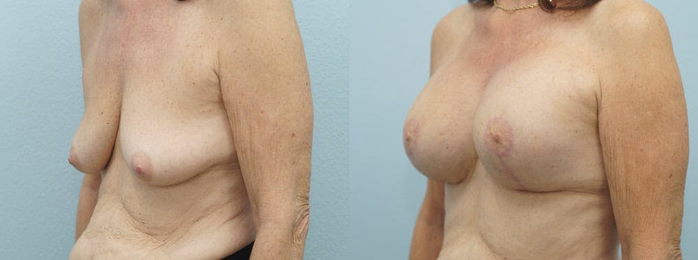 Breast Lift With Implants Gallery - Patient 48813965 - Image 2