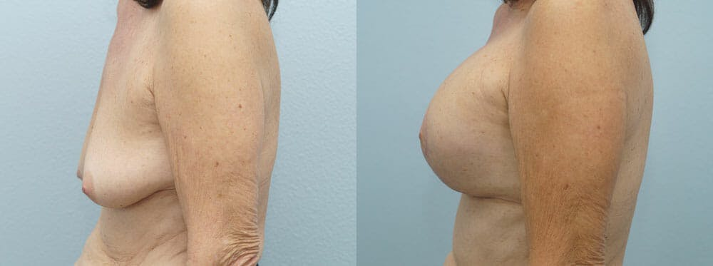 Breast Lift With Implants Gallery - Patient 48813965 - Image 3