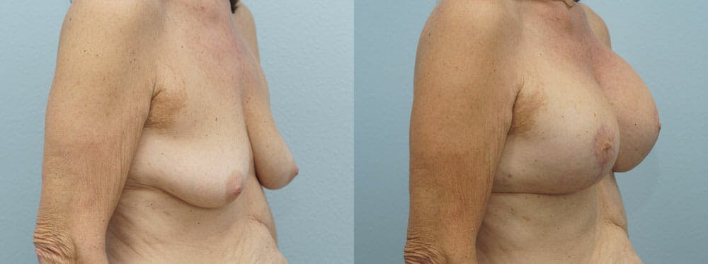 Breast Lift With Implants Gallery - Patient 48813965 - Image 4