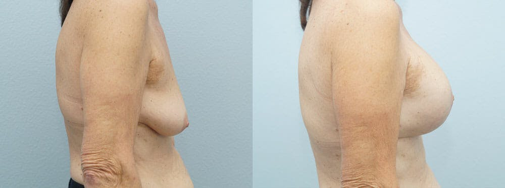 Breast Lift With Implants Gallery - Patient 48813965 - Image 5