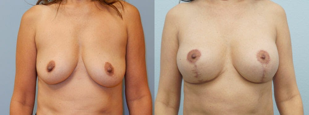 Breast Lift With Implants Gallery - Patient 48813970 - Image 1