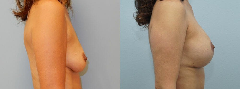 Breast Lift With Implants Gallery - Patient 48813970 - Image 2