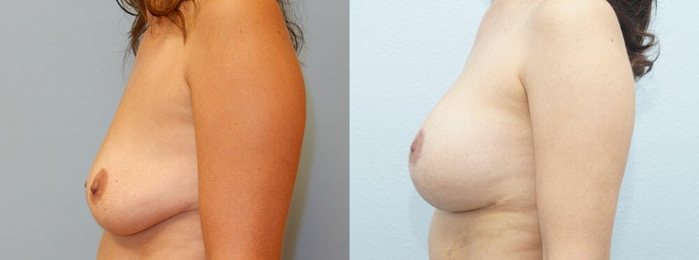 Breast Lift With Implants Gallery - Patient 48813970 - Image 3