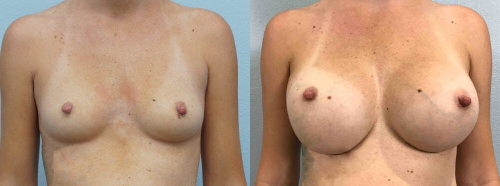 Breast Augmentation Gallery - Patient 48813985 - Image 1