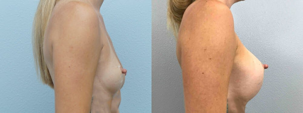 Breast Augmentation Gallery - Patient 48813985 - Image 2