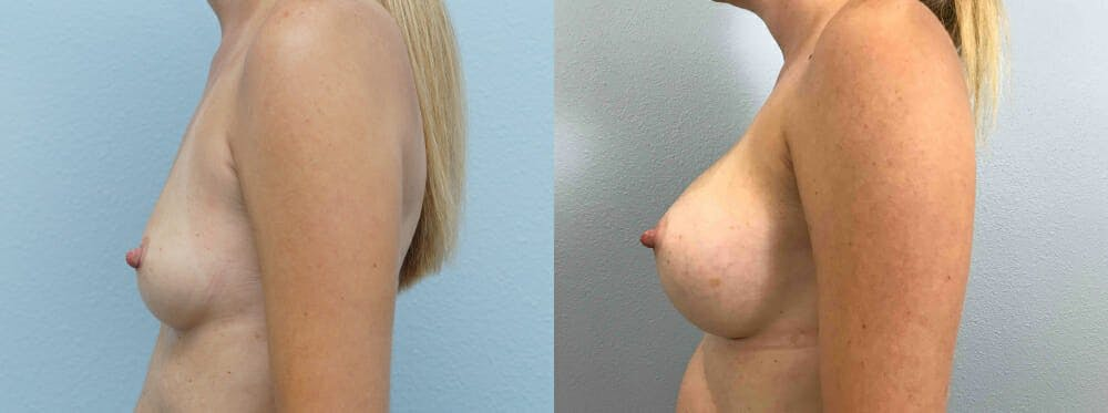 Breast Augmentation Gallery - Patient 48813985 - Image 3