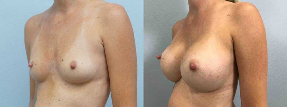Breast Augmentation Gallery - Patient 48813985 - Image 4