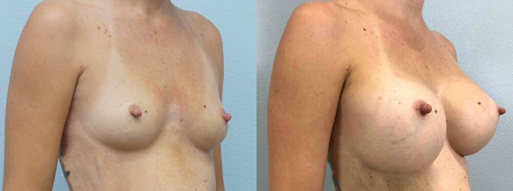 Breast Augmentation Gallery - Patient 48813985 - Image 5