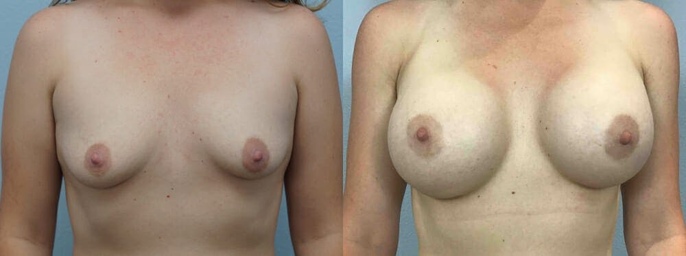 Breast Augmentation Gallery - Patient 48813990 - Image 1