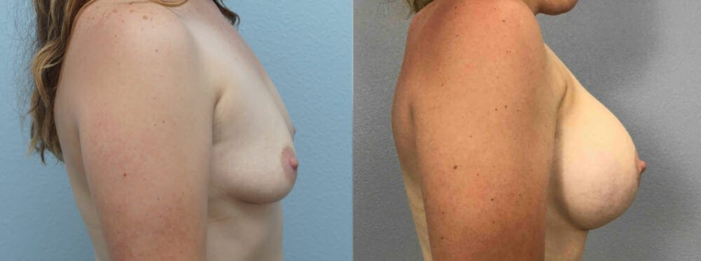 Breast Augmentation Gallery - Patient 48813990 - Image 2
