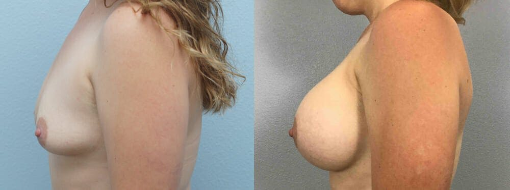 Breast Augmentation Gallery - Patient 48813990 - Image 3