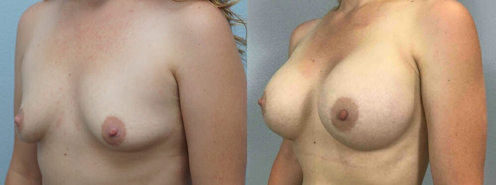 Breast Augmentation Gallery - Patient 48813990 - Image 4