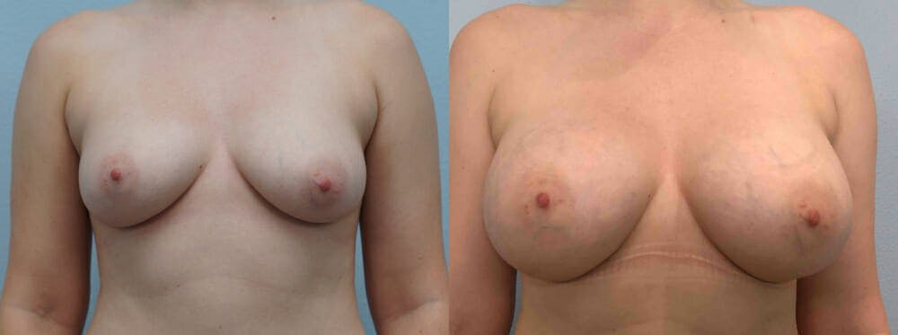 Breast Augmentation Gallery - Patient 48813996 - Image 1