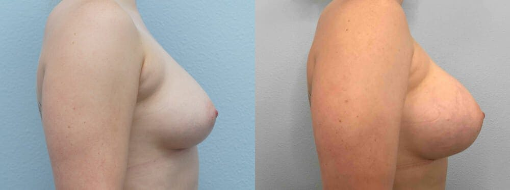 Breast Augmentation Gallery - Patient 48813996 - Image 2