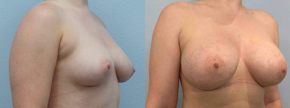 Breast Augmentation Gallery - Patient 48813996 - Image 3