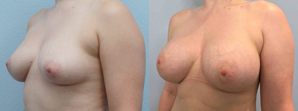 Breast Augmentation Gallery - Patient 48813996 - Image 4