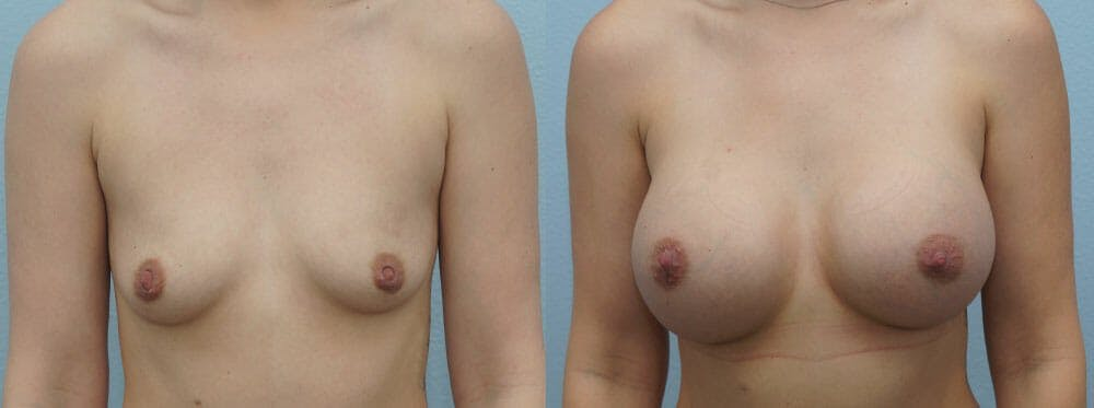 Breast Augmentation Gallery - Patient 48814012 - Image 1