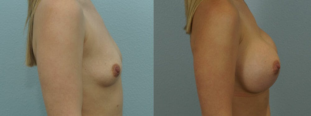 Breast Augmentation Gallery - Patient 48814012 - Image 2