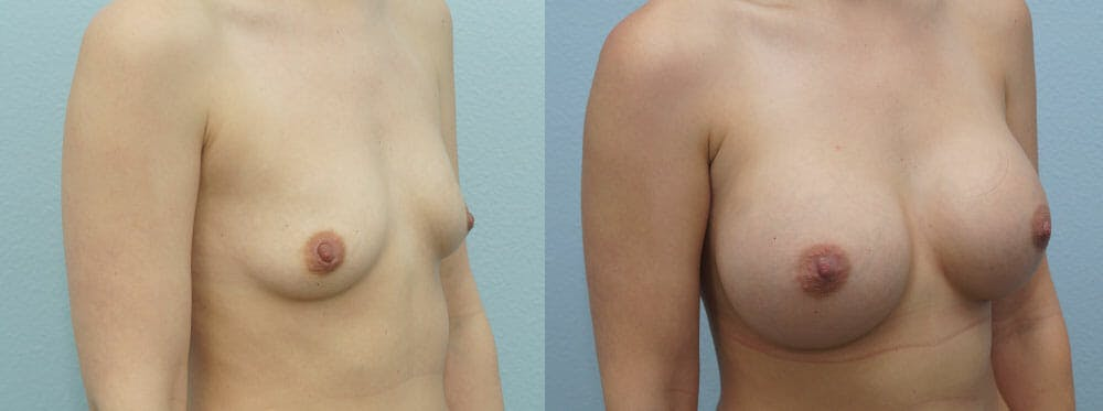 Breast Augmentation Gallery - Patient 48814012 - Image 3