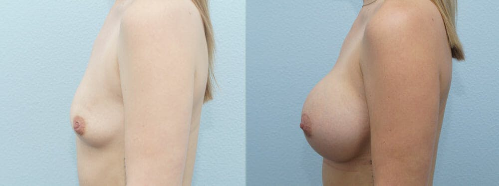 Breast Augmentation Gallery - Patient 48814012 - Image 4