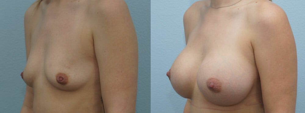 Breast Augmentation Gallery - Patient 48814012 - Image 5