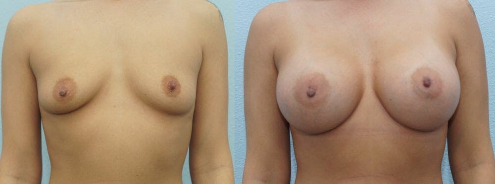 Breast Augmentation Gallery - Patient 48814018 - Image 1
