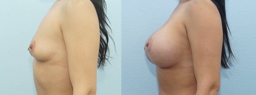 Breast Augmentation Gallery - Patient 48814018 - Image 3