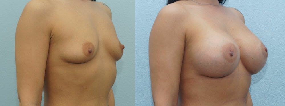 Breast Augmentation Gallery - Patient 48814018 - Image 4