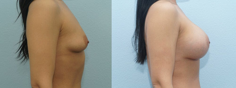 Breast Augmentation Gallery - Patient 48814018 - Image 5