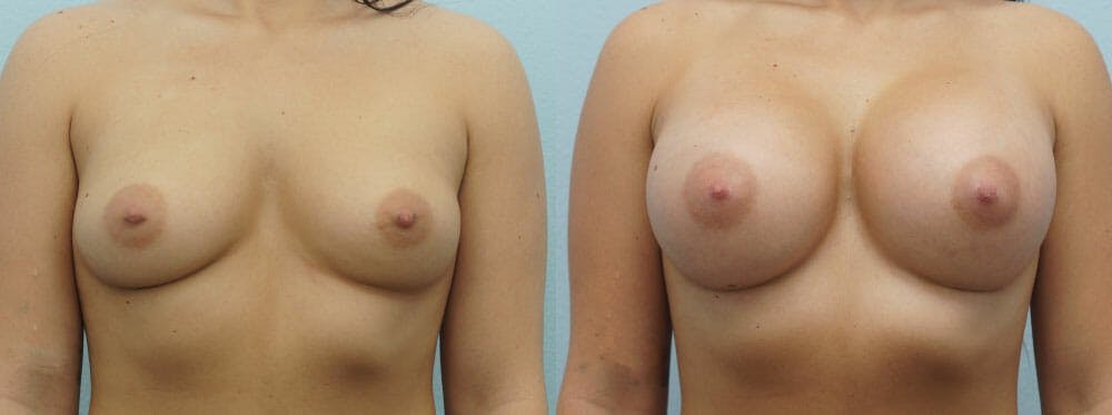Breast Augmentation Gallery - Patient 48814024 - Image 1