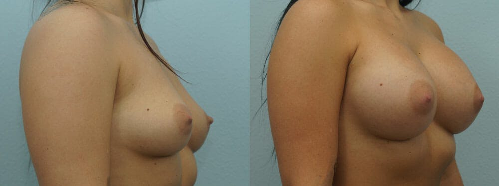 Breast Augmentation Gallery - Patient 48814024 - Image 2
