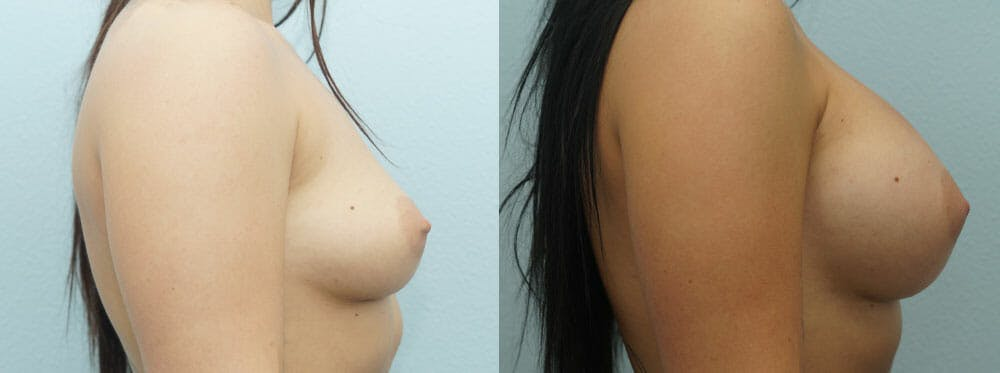 Breast Augmentation Gallery - Patient 48814024 - Image 3