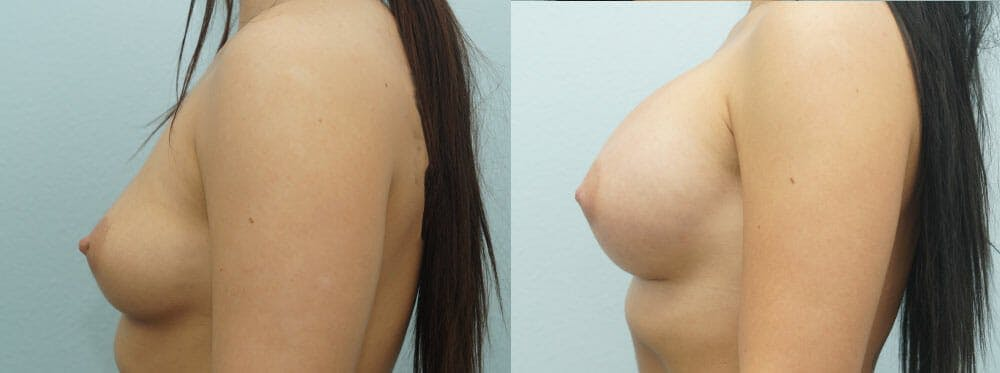 Breast Augmentation Gallery - Patient 48814024 - Image 5