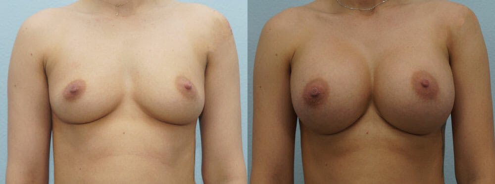 Breast Augmentation Gallery - Patient 48814034 - Image 1