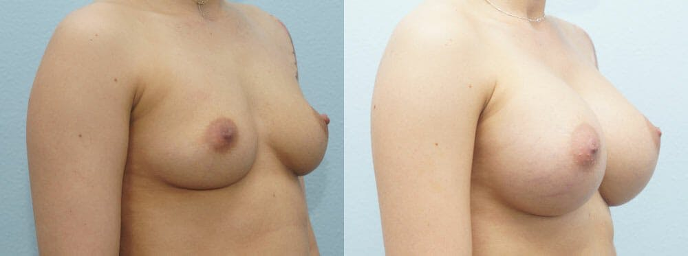 Breast Augmentation Gallery - Patient 48814034 - Image 2