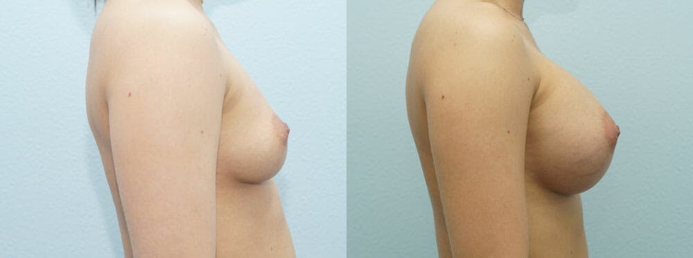 Breast Augmentation Gallery - Patient 48814034 - Image 3