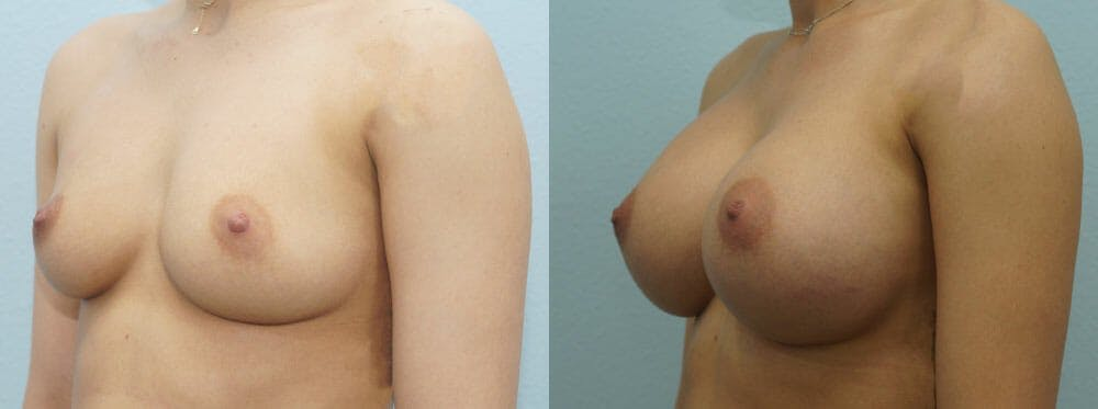 Breast Augmentation Gallery - Patient 48814034 - Image 4