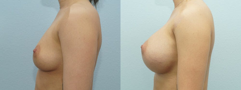 Breast Augmentation Gallery - Patient 48814034 - Image 5