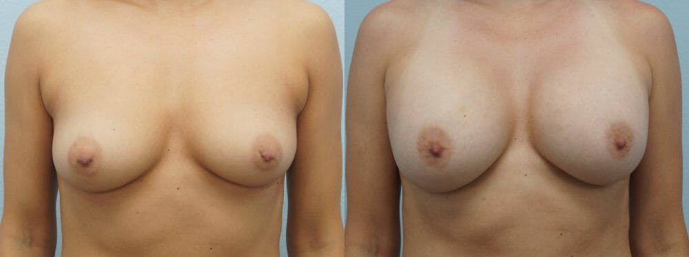 Breast Augmentation Gallery - Patient 48814040 - Image 1