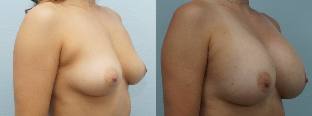 Breast Augmentation Gallery - Patient 48814040 - Image 2