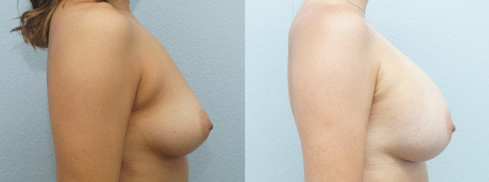 Breast Augmentation Gallery - Patient 48814040 - Image 3