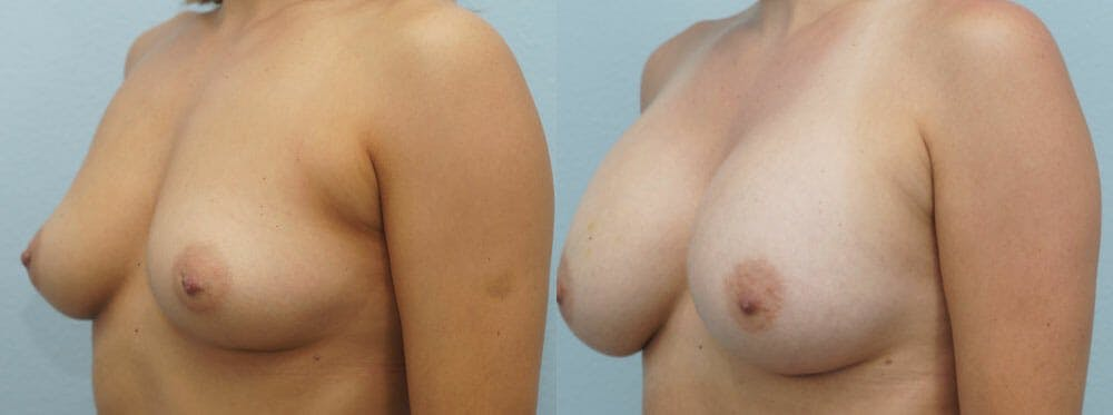 Breast Augmentation Gallery - Patient 48814040 - Image 4