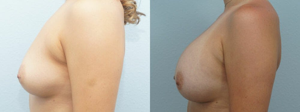 Breast Augmentation Gallery - Patient 48814040 - Image 5