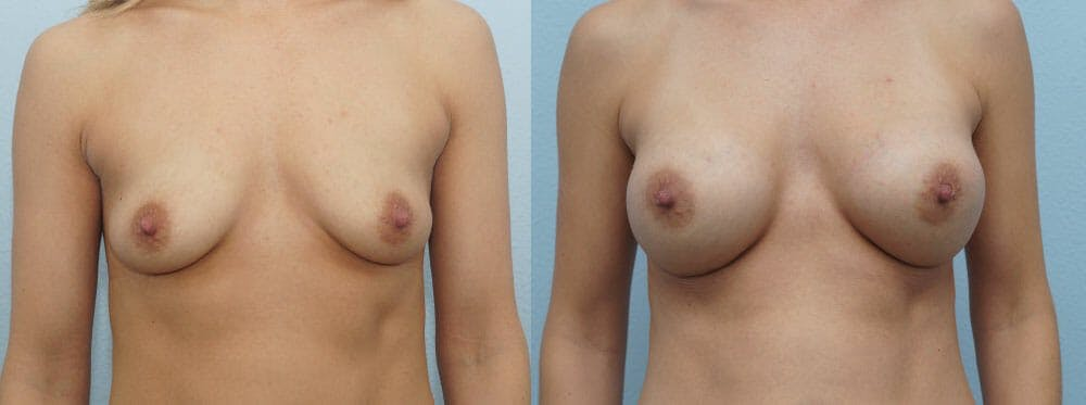 Breast Augmentation Gallery - Patient 48814046 - Image 1