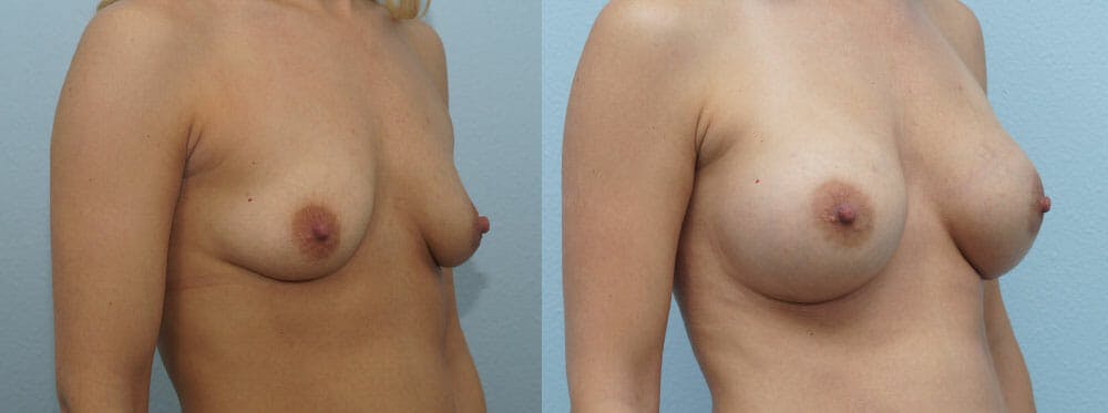 Breast Augmentation Gallery - Patient 48814046 - Image 2
