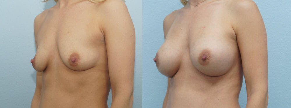 Breast Augmentation Gallery - Patient 48814046 - Image 4